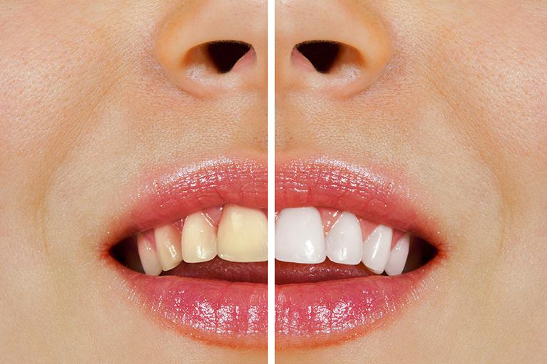 歯の変色が気になるあなたに。自然で美しい「白い歯」を